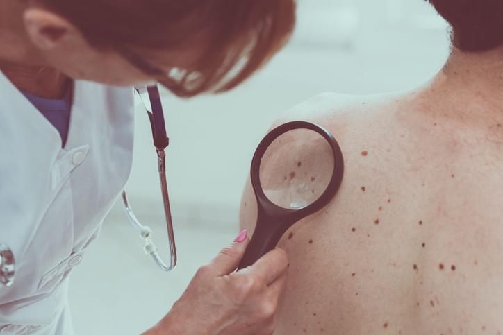 Como obter o Registro de Qualificação de Especialista em dermatologia?